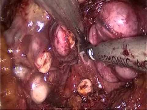 Prostata pneumomassage