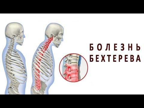 Артроз коленного сустава и лечение ультразвуком