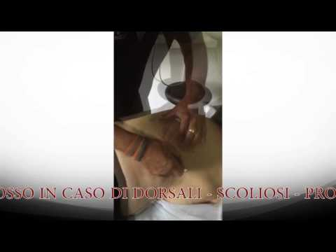 Come trattare osteocondrosi lombare