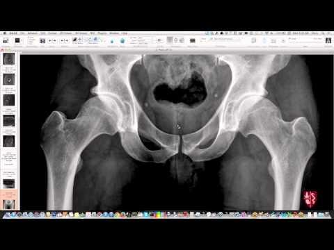 Miednica i biodra - niezbędny obraz radiograficzny
