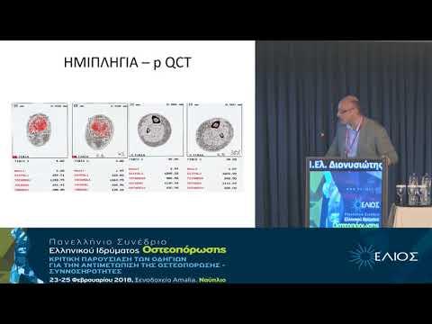 Διονυσιώτης Ι. - Ελ Νευρολογικές παθήσεις και οστά