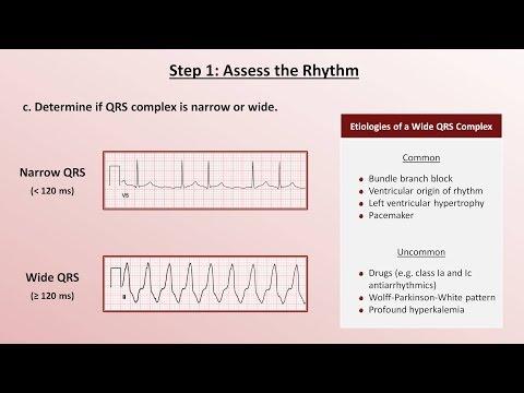Intro to EKG Interpretation - A Systematic Approach