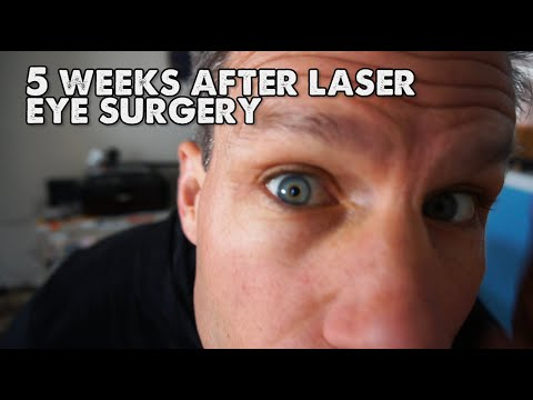 PRK Vs Lasik Eye Surgery? I Went With PRK