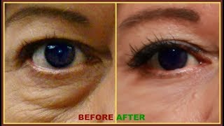 3 DAYS TO REMOVE PUFFY EYES AND EYE BAG EFFECTIVELY, DRY UNDER EYES AND WRINKLES AROUND THE EYES