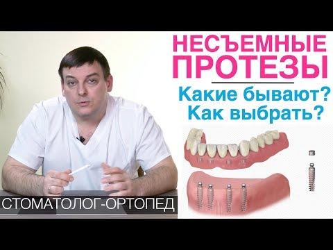 Несъемные зубные протезы - какие бывают и какой выбрать?