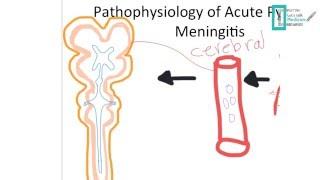 Meningitis Part 1