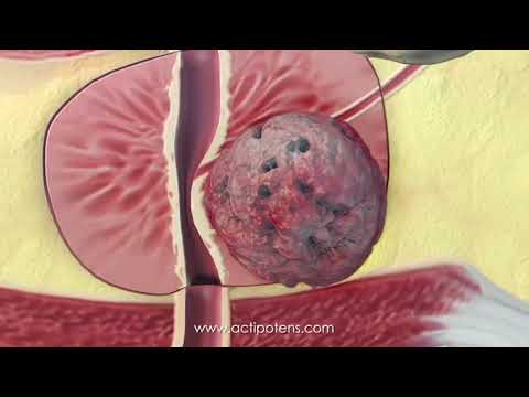 The 2nd stage adenom prostate