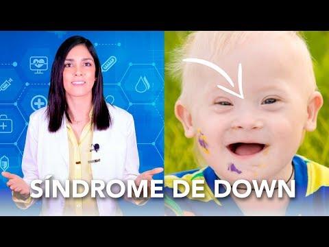 Watch videoEl origen de la trisomía 21| Salud en Corto - Dra Jackie