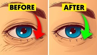Natural Ways to Get Rid of Wrinkles and Look Younger