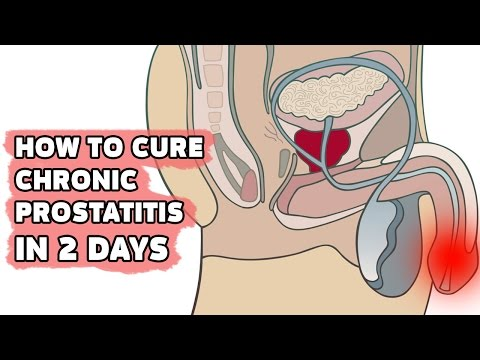 Prostatitis in men to treat the symptoms of treatment