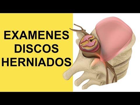 Artrosis post-traumática de la articulación de la cadera derecha