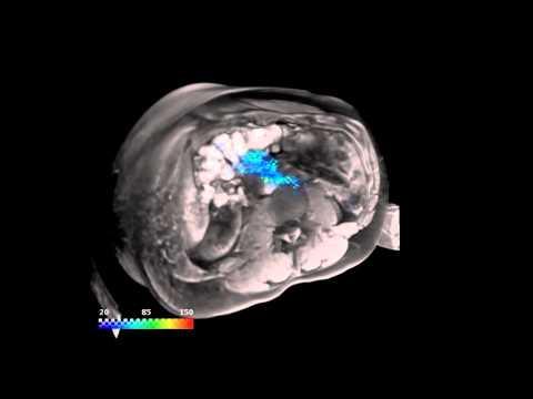 Lange Glucophage zur Behandlung von Diabetes Typ 2 Bewertungen