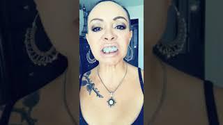 Broken jaw (mandible) with teeth wired shut