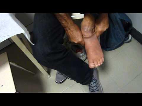 Pietra hypostasis sul 5o dito del piede