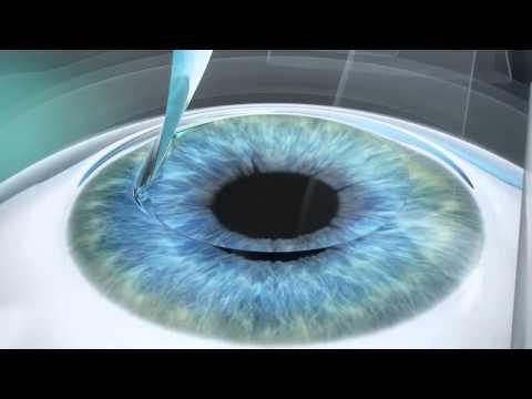 Кто улучшил свое зрение с помощью упражнений