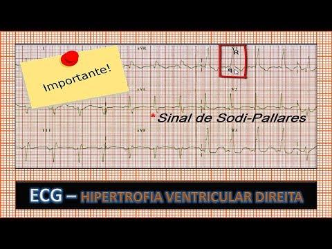 Enfarte do miocárdio, a pressão arterial