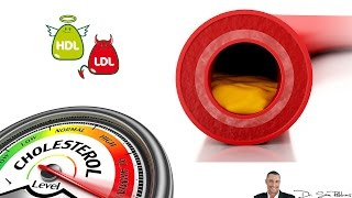 Cholesterol Levels Chart Explanation - HDL and LDL cholesterol