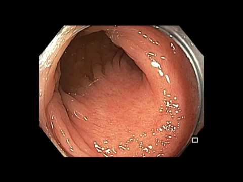 Colonoscopy: Examination of Rectal EMR scar after piecemeal EMR