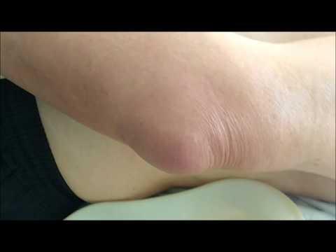 Боли в верхней части спины при движениях