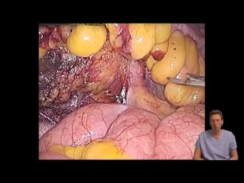 Laparoscopic Ultra Low Anterior Resection With Colo-Anal Pull-through Anastomosis