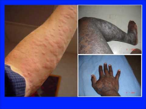 La photo du psoriasis sur les mains