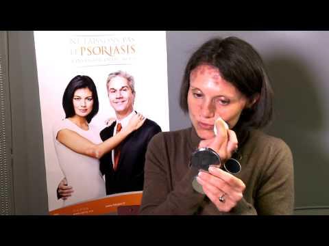 Le prix du traitement du psoriasis à sankt-peterbourge