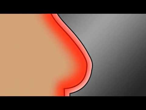 Das Mittel nach der Erhöhung der Brust zu bestellen