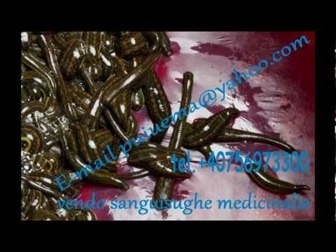 Comprare pillole thrombophlebitis