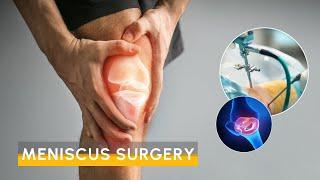 Video Meniscus Surgery
