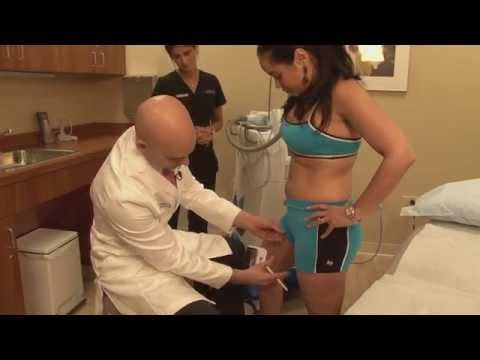 CoolSculpting of Inner Thigh Fat