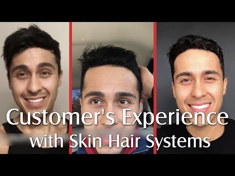 User Experience of 3 Skin Hair System