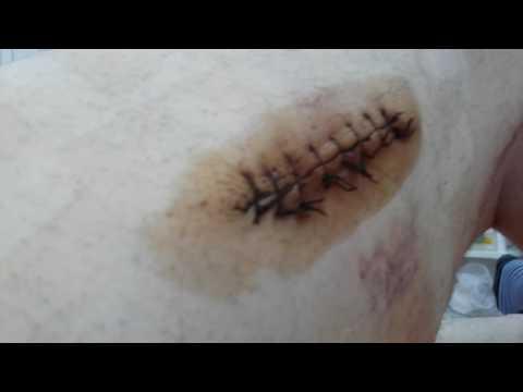 Осмотр,обработка,перевязка раны (2 часть)