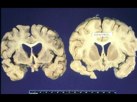 Video Huntington Disease