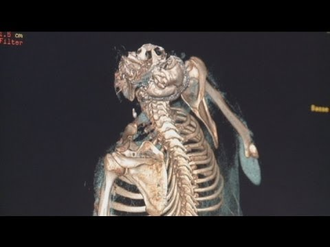 Lunguento di Vishnevsky di thrombophlebitis come rivolgersi
