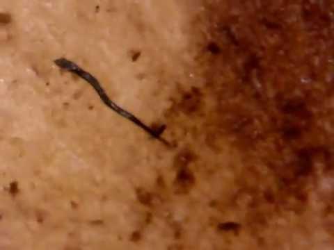 Mga Larawan pantao parasitiko