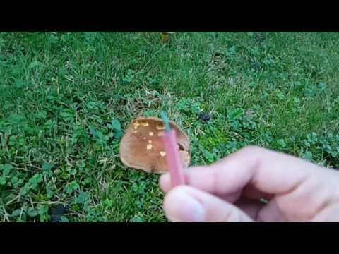 Che trattare un fungo su unghie di gambe e i talloni