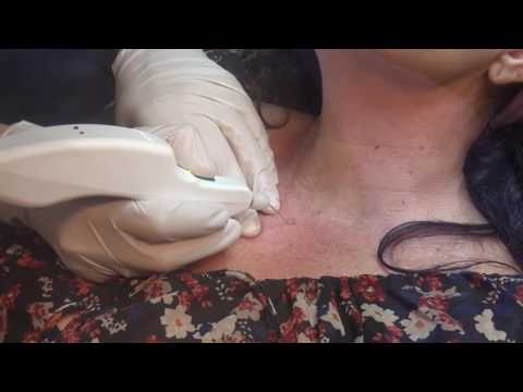 Skin Spots Removal with Plexr