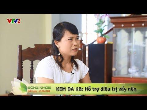 VTV2 - SỐNG KHỎE MỖI NGÀY: BN Vẩy nến Phan Thị Huyền