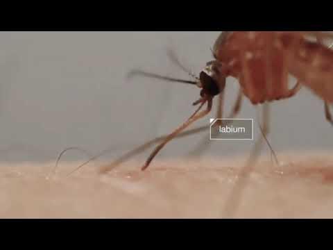 รักษาเส้นเลือดขอดที่ขาของน้ำผึ้ง