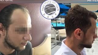 Hair Transplant Result /Manuel FUE / 3947 Graft / INSTITUTE OF HAIR