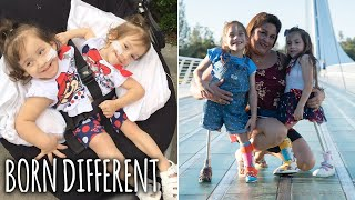 Conjoined Sisters Born As One, Now Thriving As Two | BORN DIFFERENT