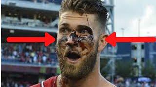 """MLB """"Black Eye"""" Moments"""