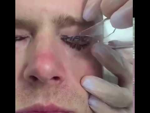 Le masque du thé des bleus sous les yeux