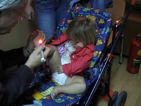 Idiopathische intrakranielle Hypertension bei Kindern