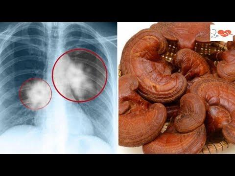 Urządzenie do leczenia zapalenia gruczołu krokowego
