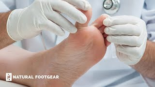 How Can I Treat Numbness in My Second Toe? | Natural Footgear