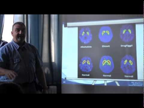 Prostamol uno alkalmazása hatásainak