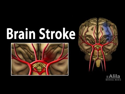 Video Brain Stroke, Types of, Causes, Pathology, Symptoms, Treatment and Prevention, Animation.