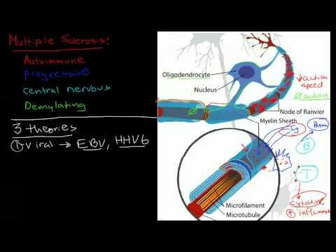 Patofizjologia stwardnienia rozsianego (SM)