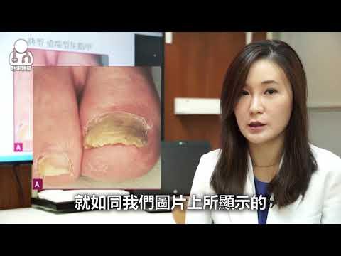 Gribok der Nägel auf den Beinen des Stadiums die Symptome